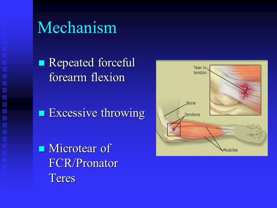Mechanism Repeated forceful forearm flexion Excessive throwing