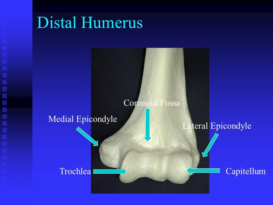 Distal Humerus Coronoid Fossa Medial Epicondyle Lateral Epicondyle