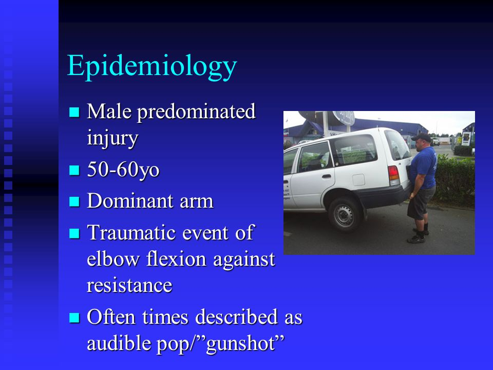 Epidemiology Male predominated injury 50-60yo Dominant arm