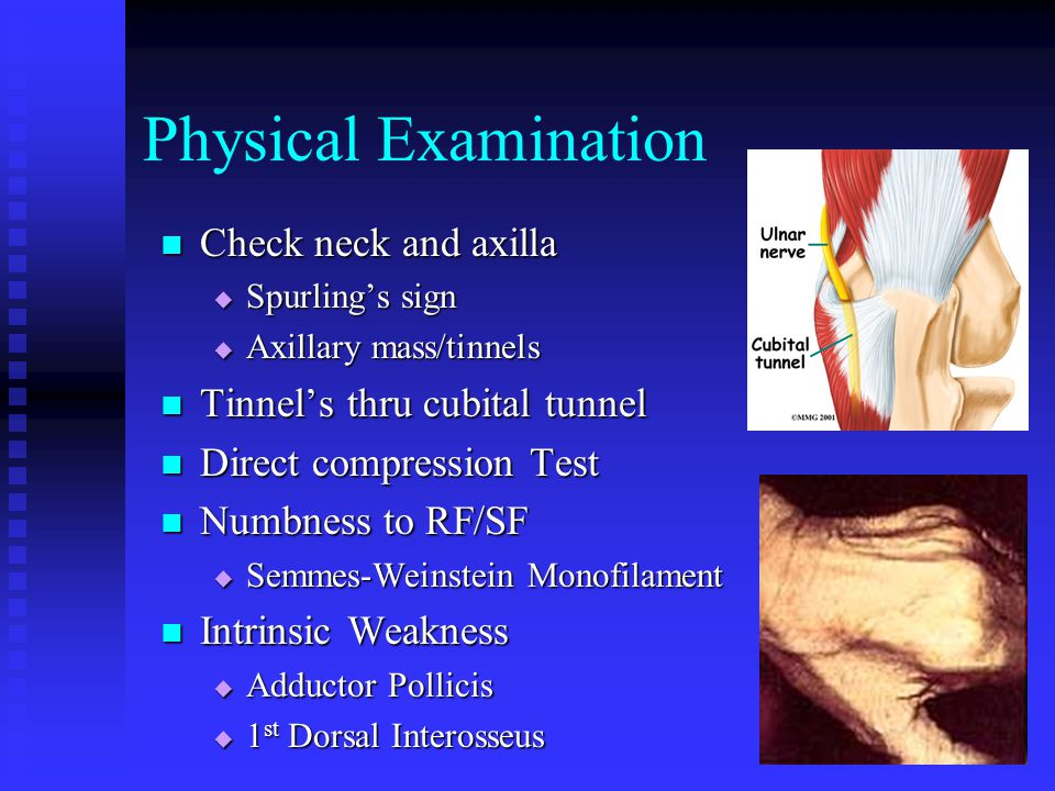 Physical Examination Check neck and axilla