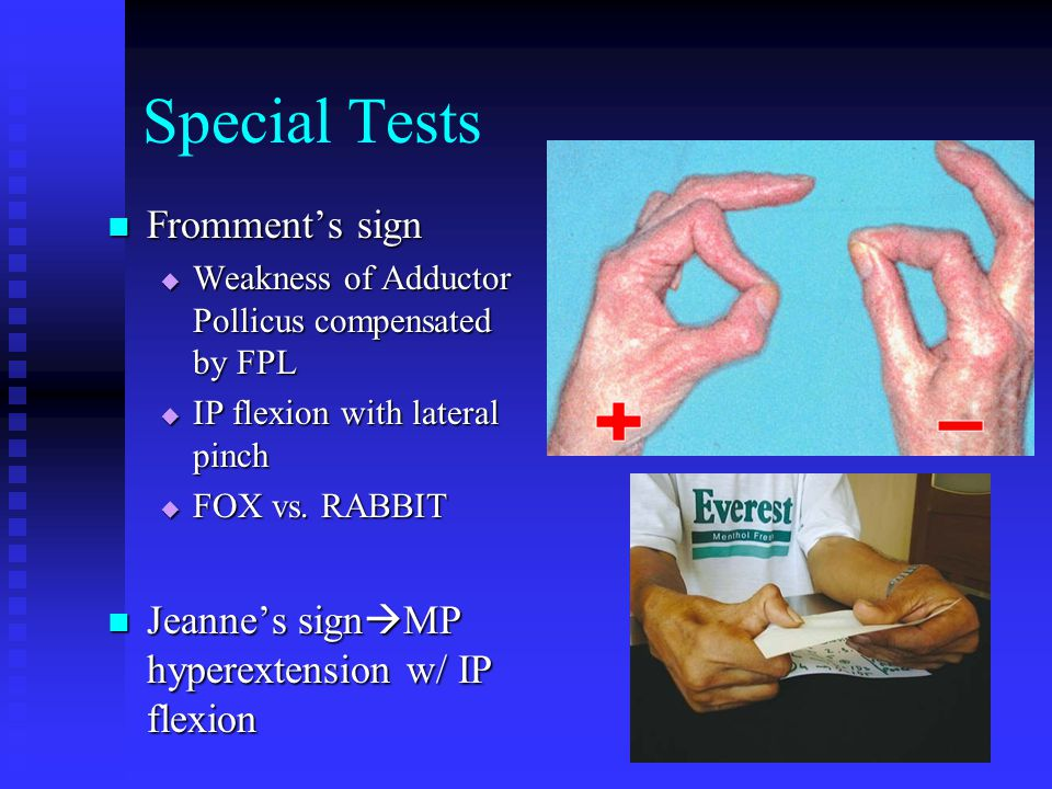 Special Tests Fromment's sign
