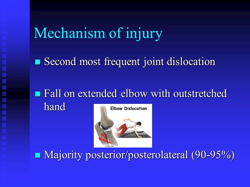 Mechanism of injury Second most frequent joint dislocation