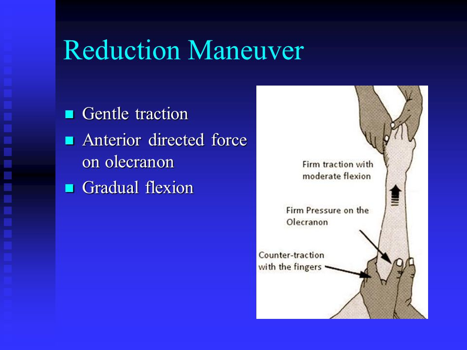 Reduction Maneuver Gentle traction