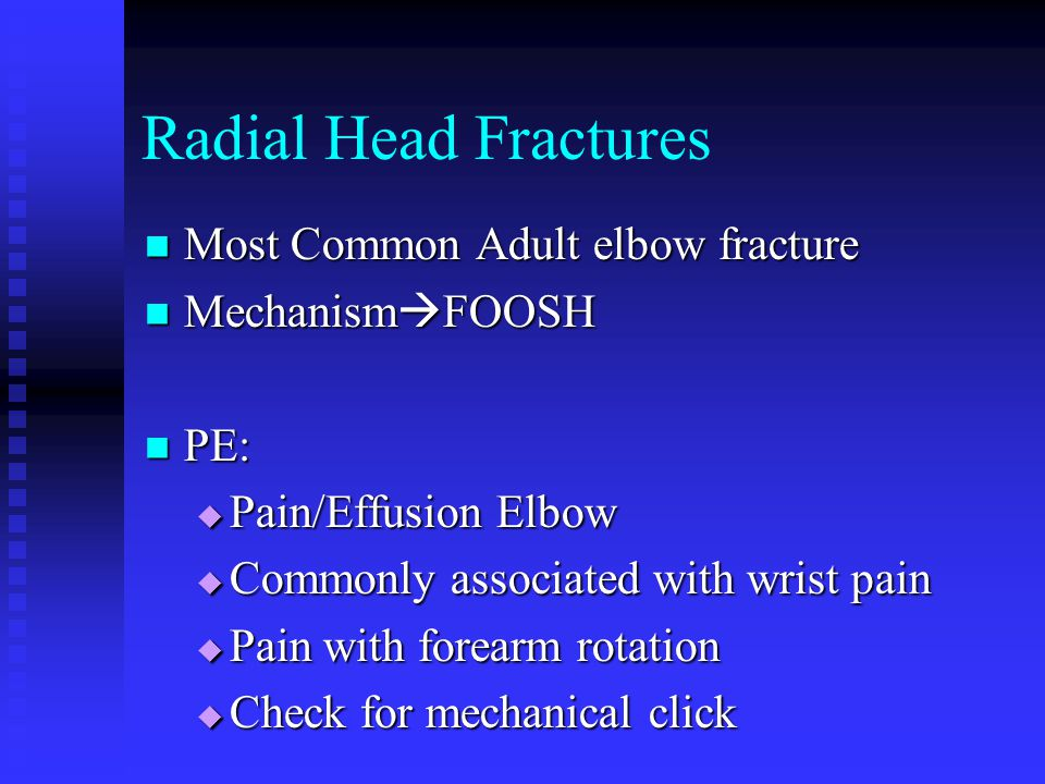 Radial Head Fractures Most Common Adult elbow fracture MechanismFOOSH