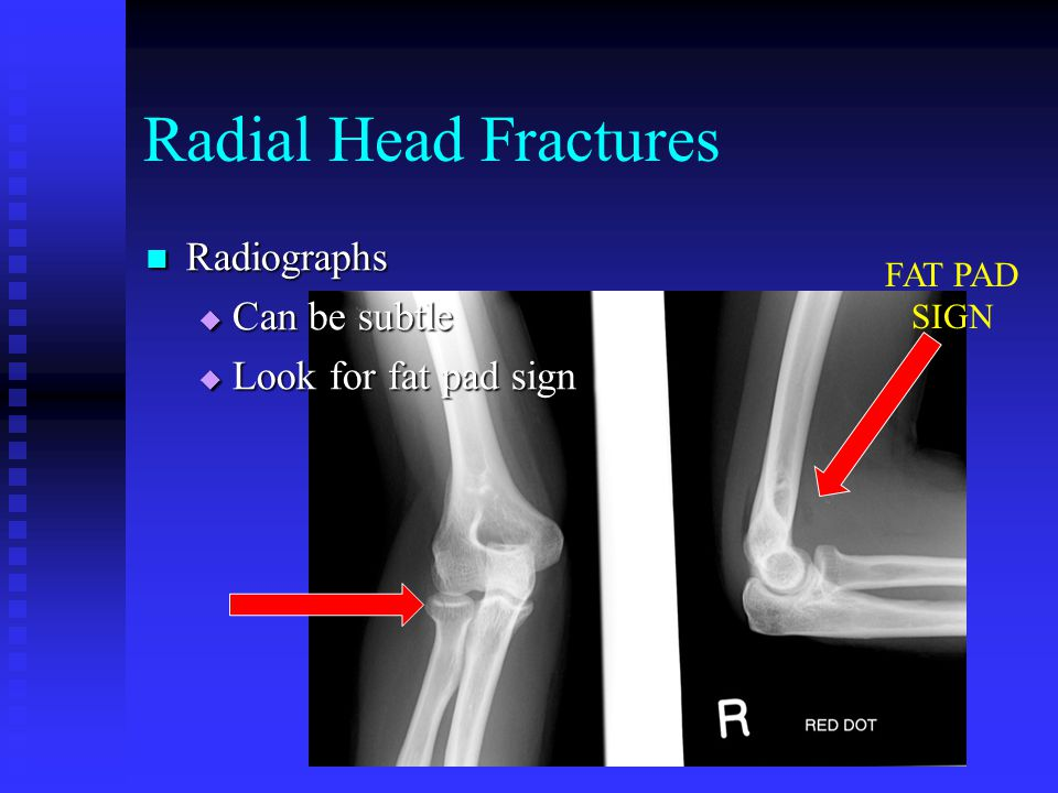 Radial Head Fractures Radiographs Can be subtle Look for fat pad sign