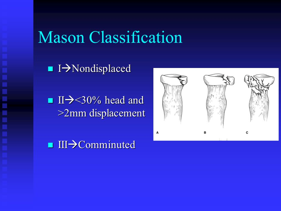 Mason Classification INondisplaced