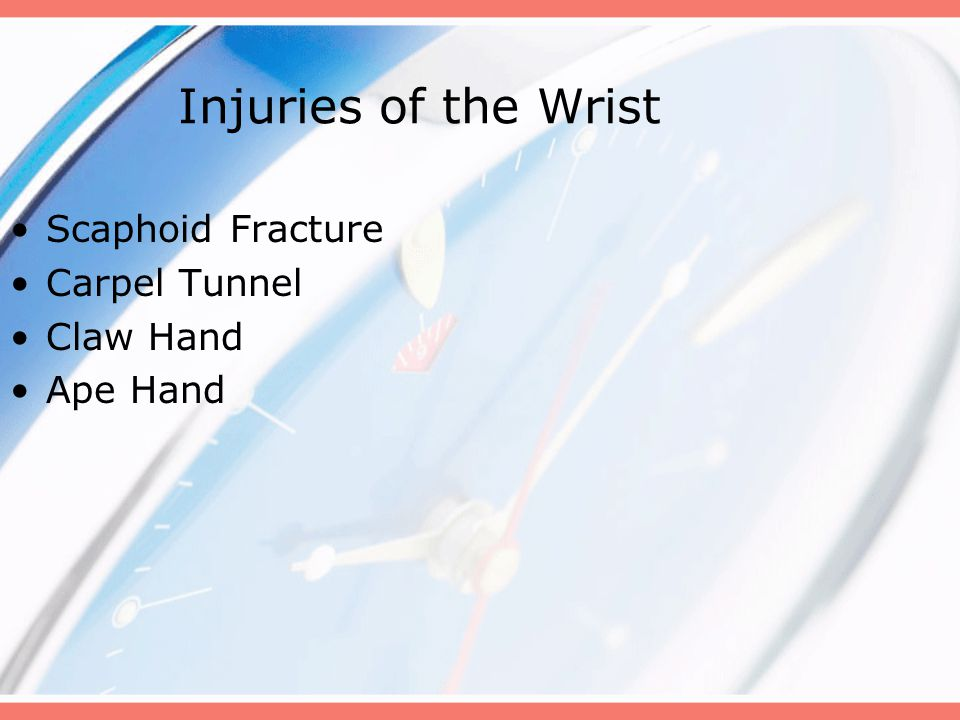 Injuries of the Wrist Scaphoid Fracture Carpel Tunnel Claw Hand