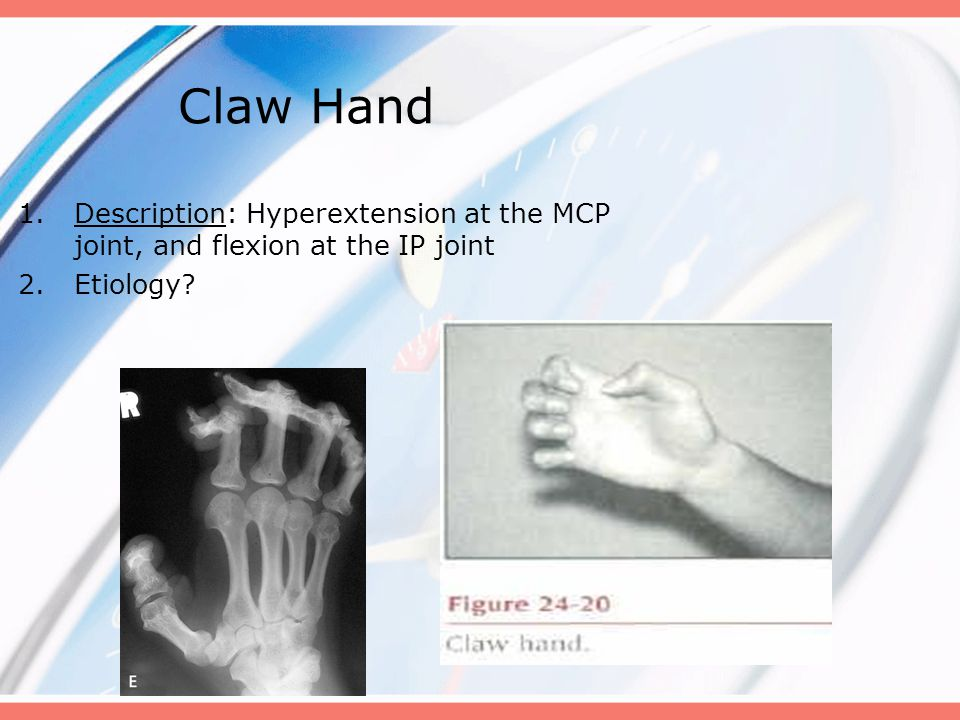 Claw Hand Description: Hyperextension at the MCP joint, and flexion at the IP joint Etiology