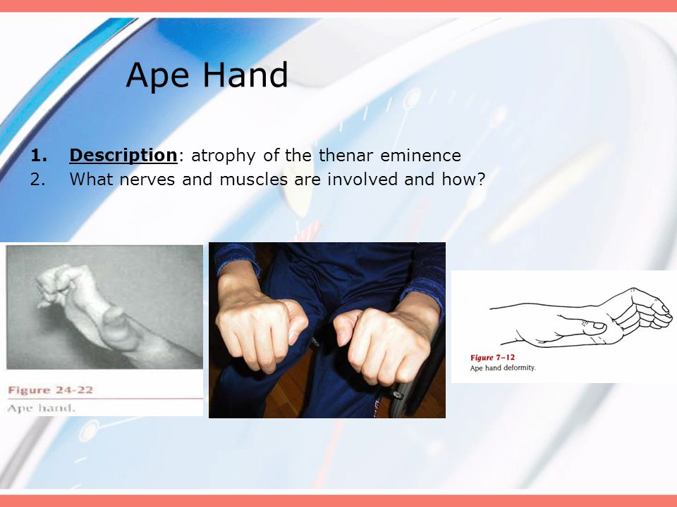 Ape Hand Description: atrophy of the thenar eminence