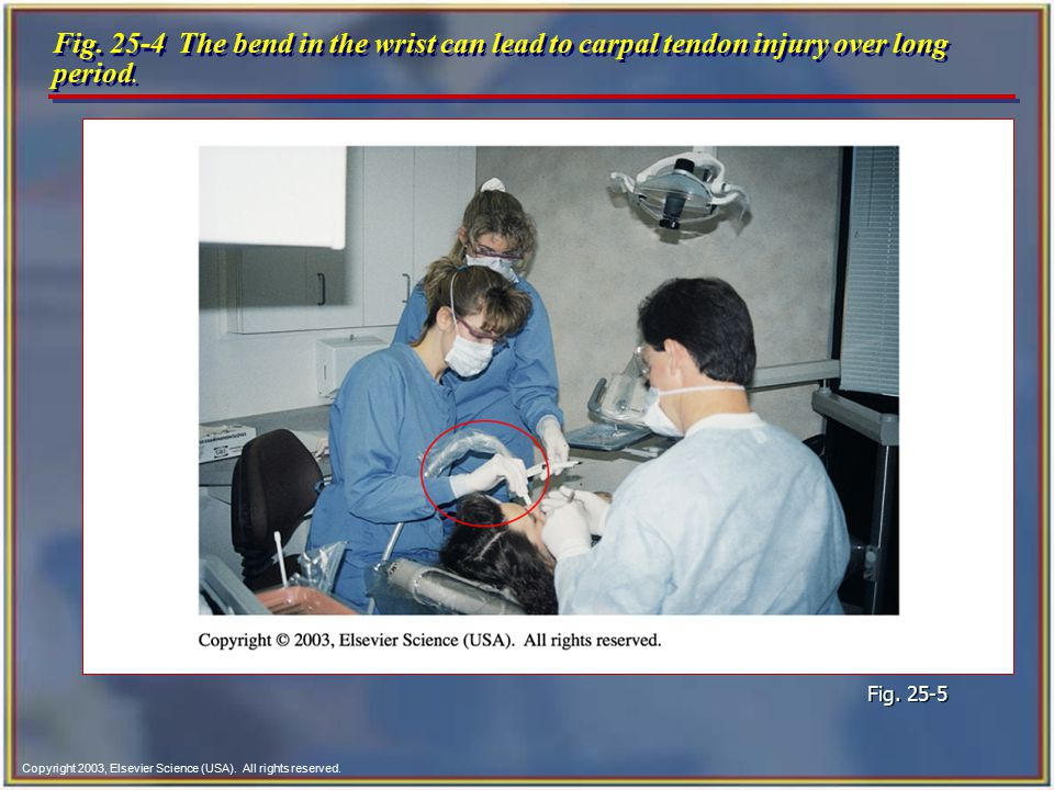 Fig. 25-4 The bend in the wrist can lead to carpal tendon injury over long period.