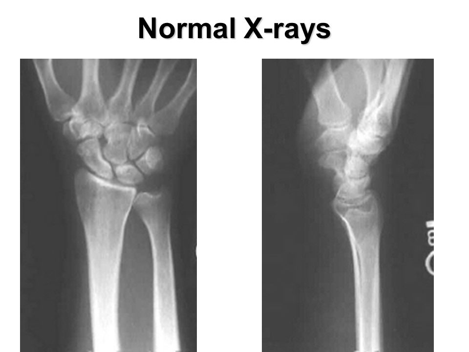 Normal X-rays