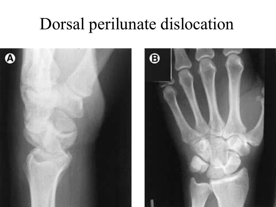 Dorsal perilunate dislocation