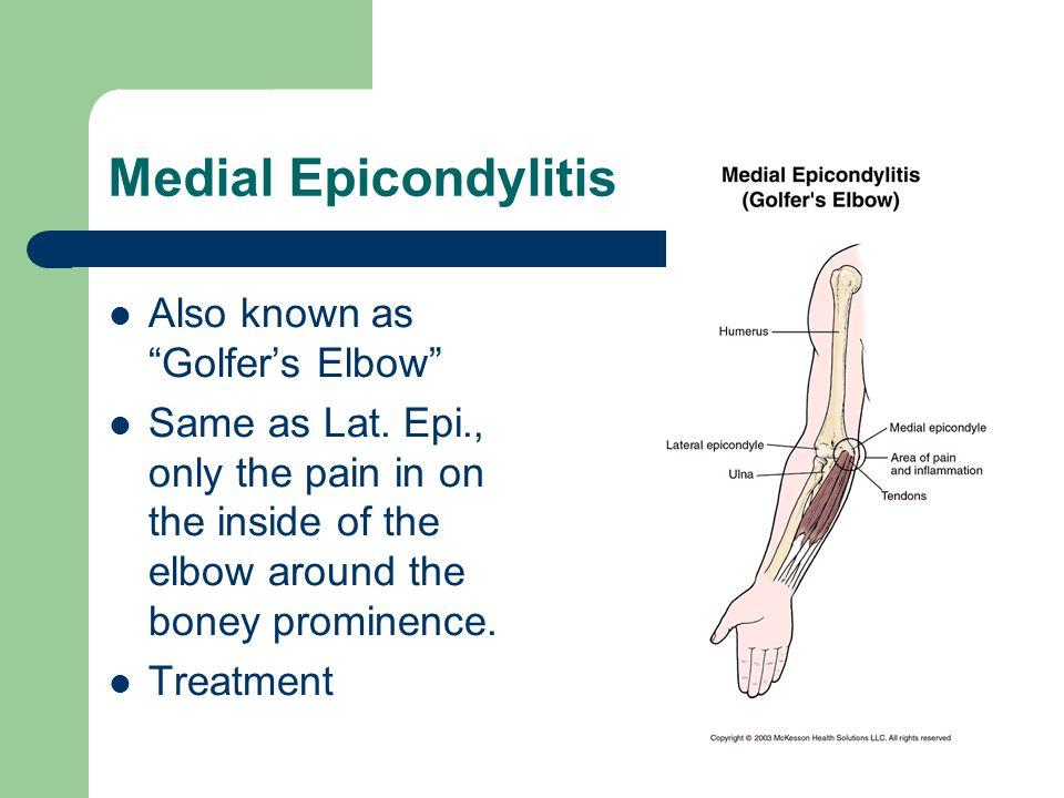 Medial Epicondylitis Also known as Golfer's Elbow