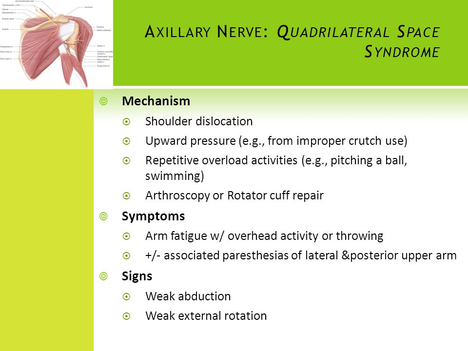 Axillary Nerve: Quadrilateral Space Syndrome