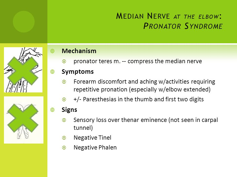 Median Nerve at the elbow: Pronator Syndrome