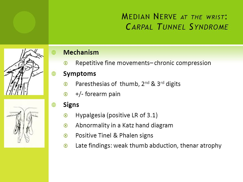 Median Nerve at the wrist: Carpal Tunnel Syndrome