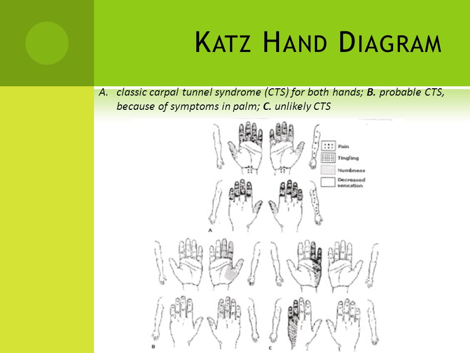 Katz Hand Diagram classic carpal tunnel syndrome (CTS) for both hands; B.