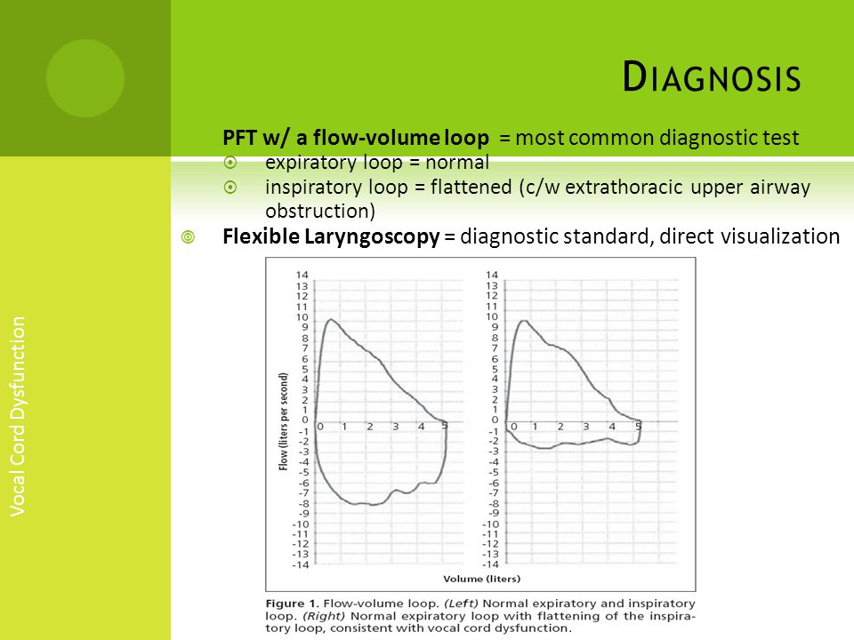 Diagnosis PFT w/ a flow-volume loop = most common diagnostic test