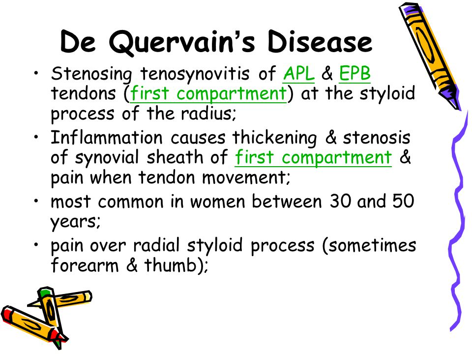 De Quervain's Disease Stenosing tenosynovitis of APL & EPB tendons (first compartment) at the styloid process of the radius;