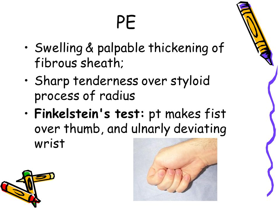 PE Swelling & palpable thickening of fibrous sheath;