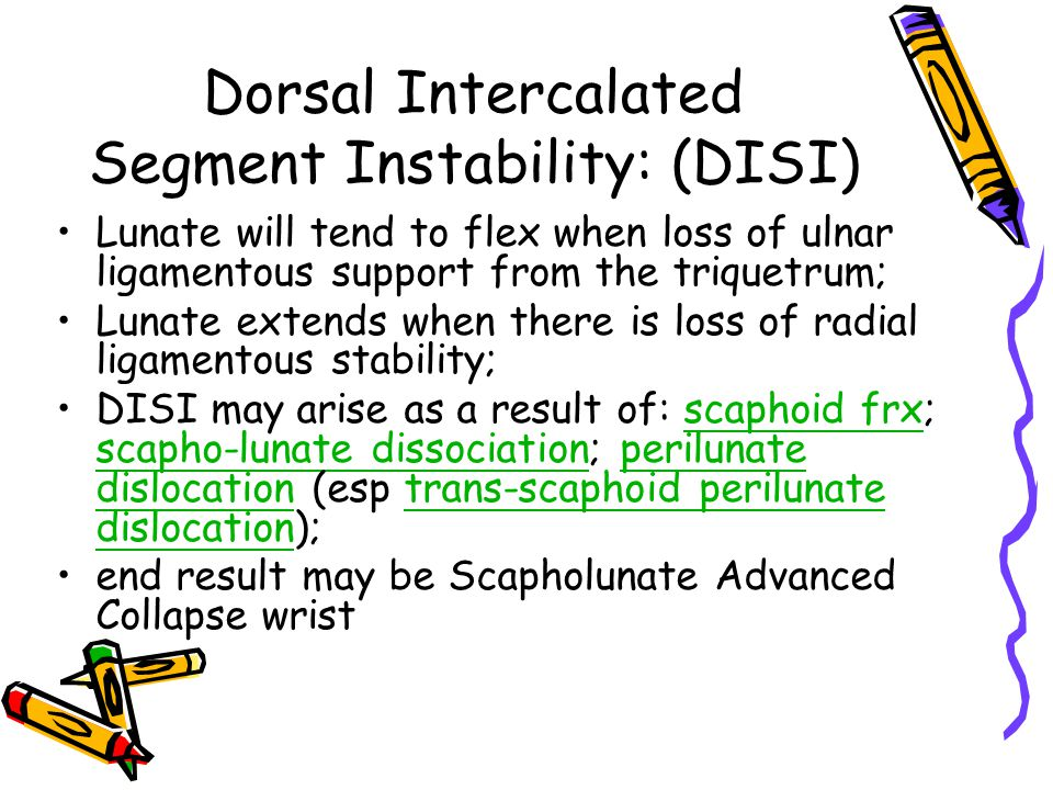 Dorsal Intercalated Segment Instability: (DISI)