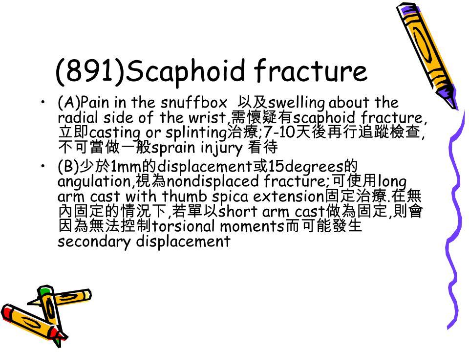 (891)Scaphoid fracture