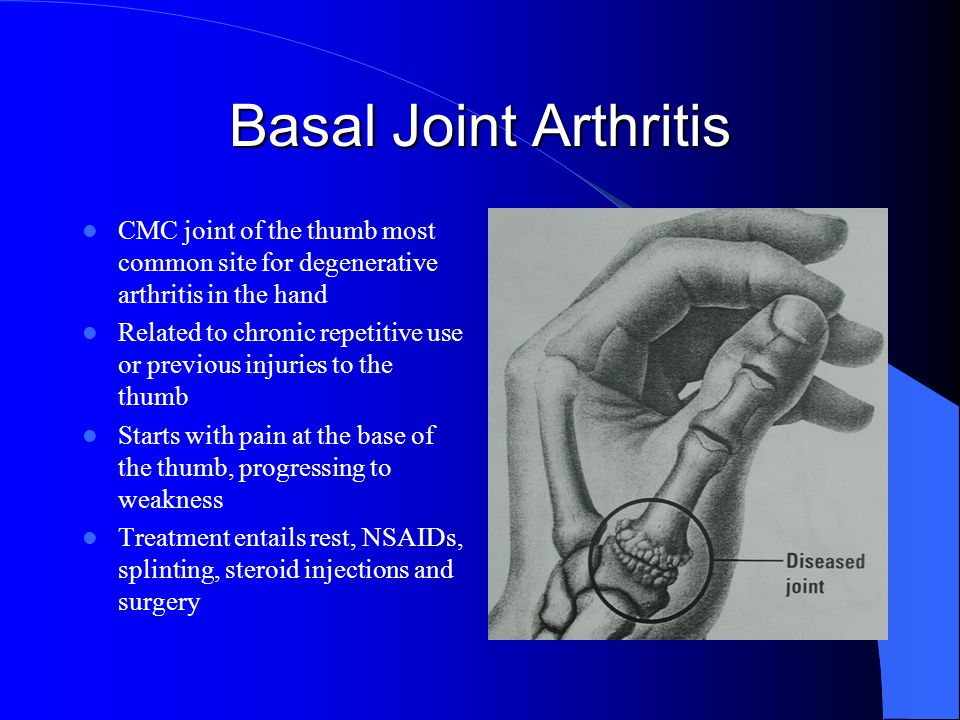 Basal Joint Arthritis CMC joint of the thumb most common site for degenerative arthritis in the hand.