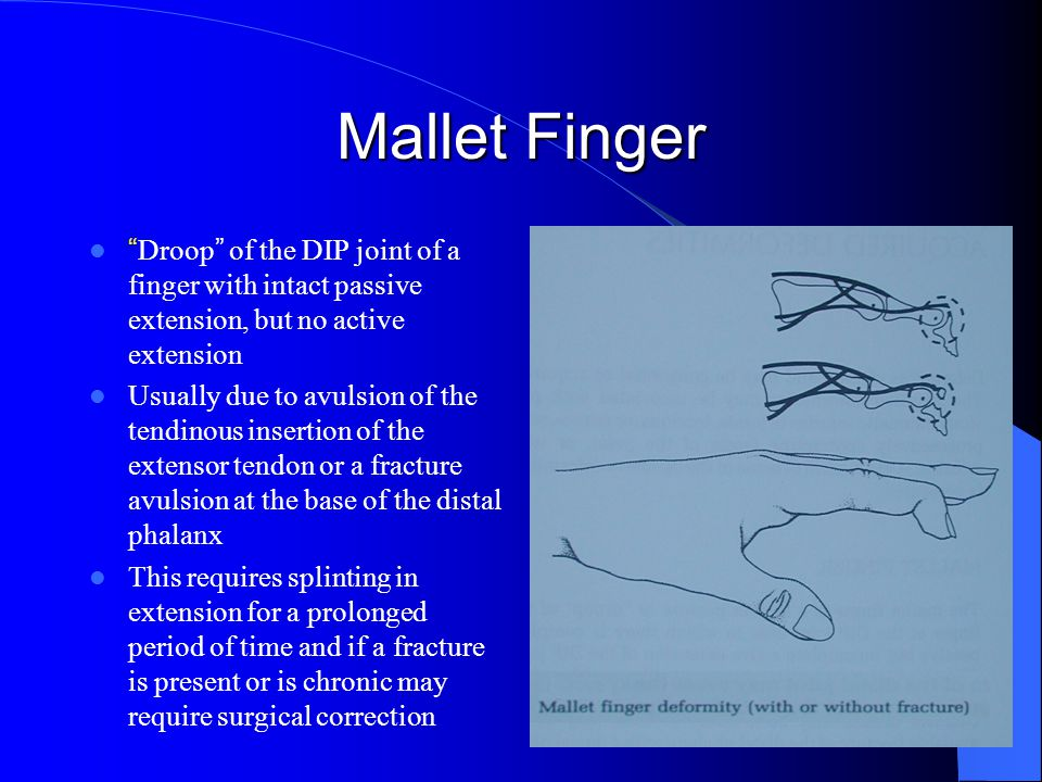 Mallet Finger Droop of the DIP joint of a finger with intact passive extension, but no active extension.