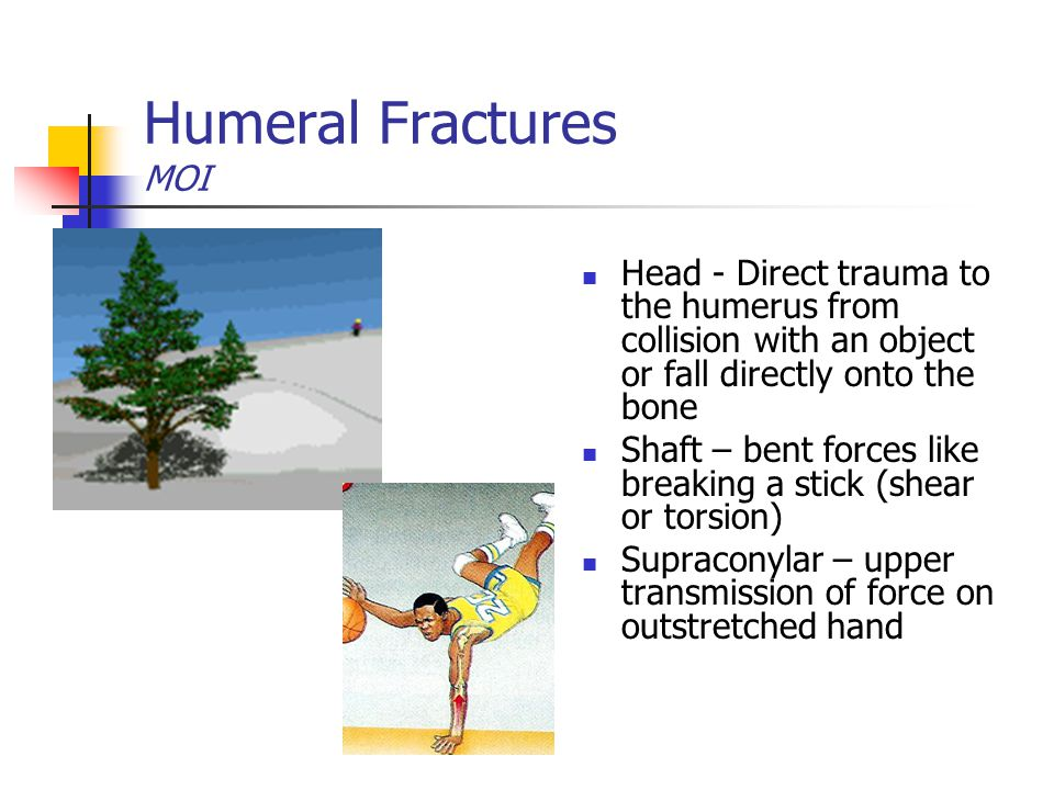 Humeral Fractures MOI Head - Direct trauma to the humerus from collision with an object or fall directly onto the bone.