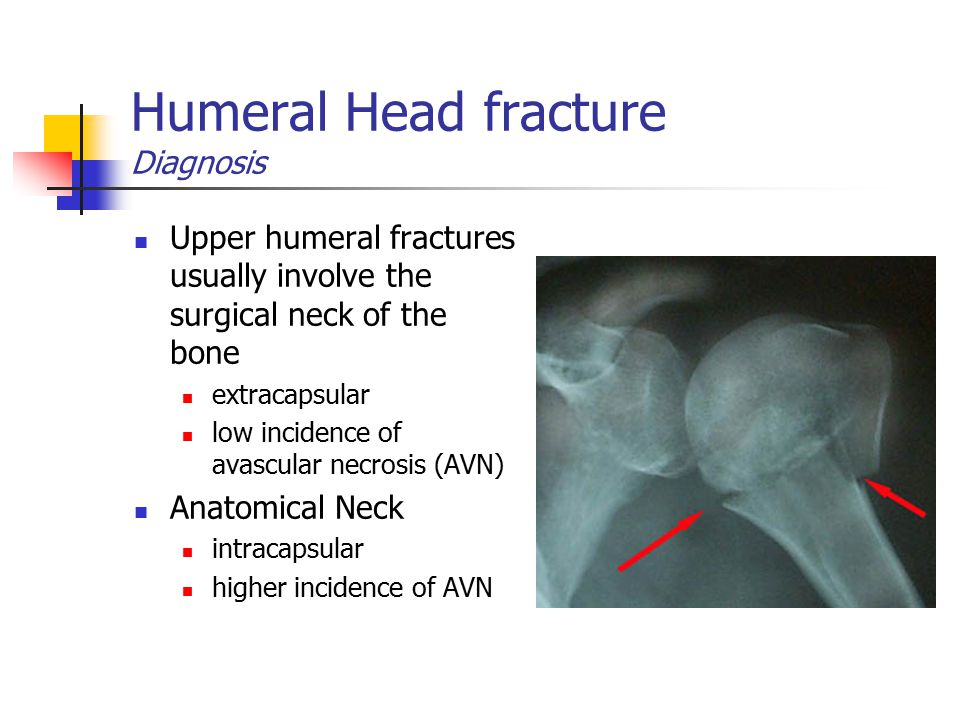 Humeral Head fracture Diagnosis