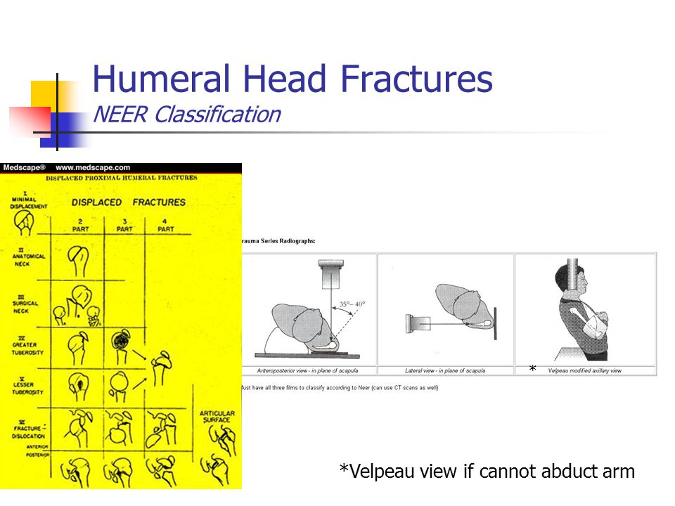 Humeral Head Fractures NEER Classification