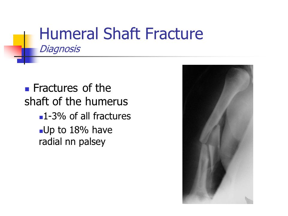Humeral Shaft Fracture Diagnosis