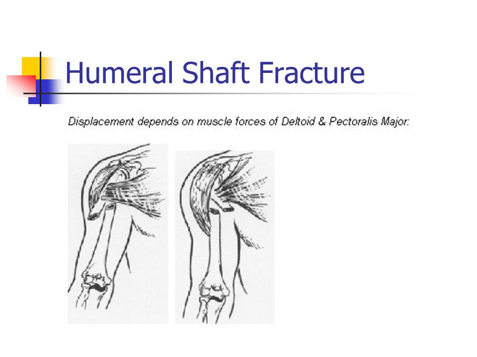Humeral Shaft Fracture