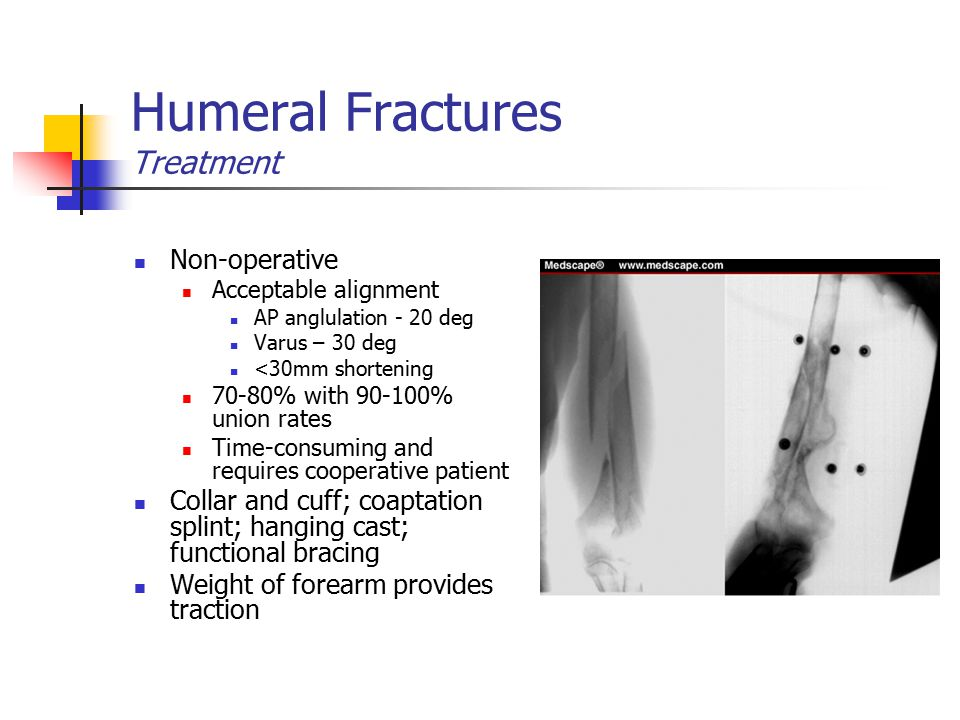 Humeral Fractures Treatment