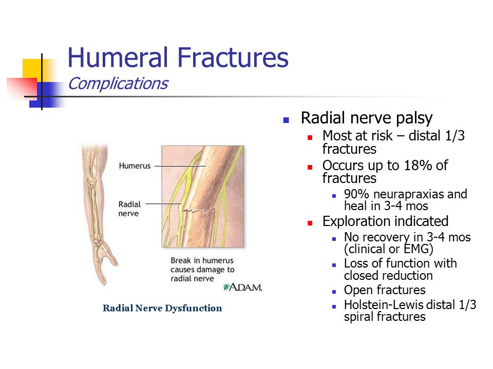 Humeral Fractures Complications