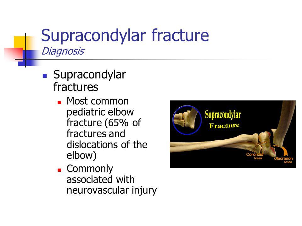 Supracondylar fracture Diagnosis