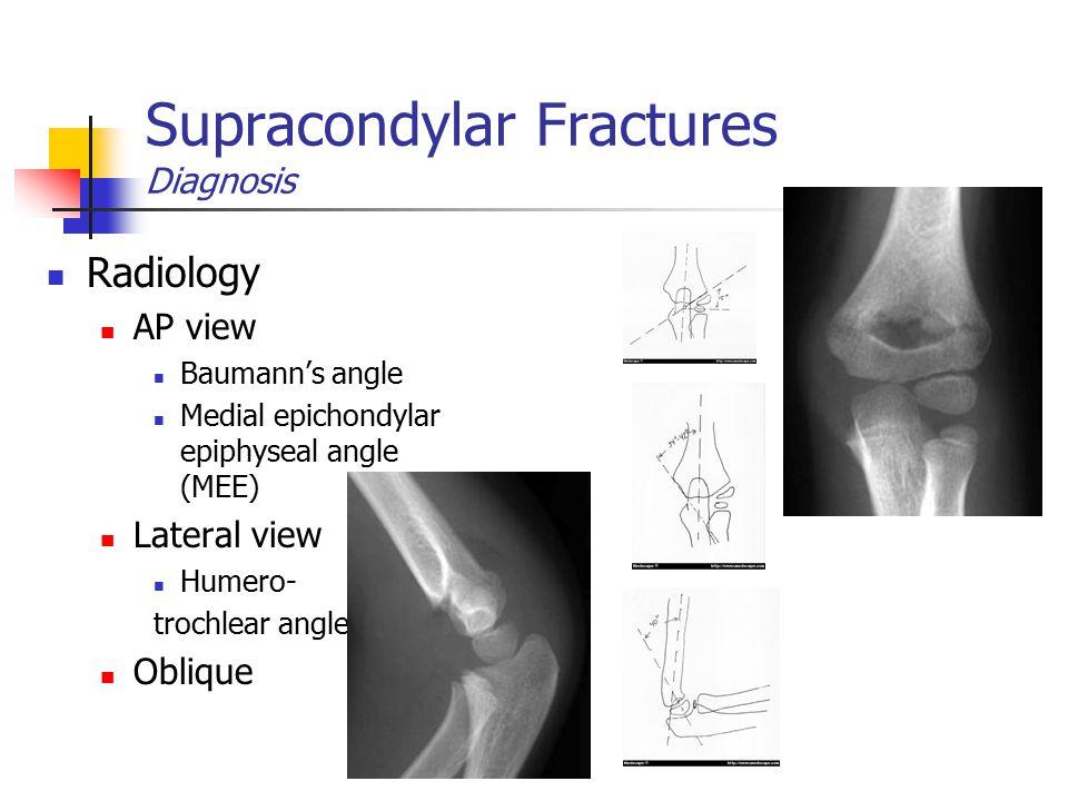 Supracondylar Fractures Diagnosis