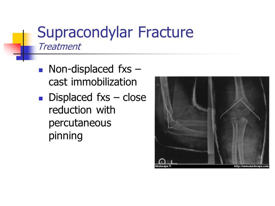 Supracondylar Fracture Treatment