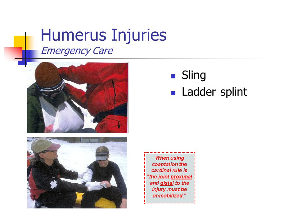 Humerus Injuries Emergency Care