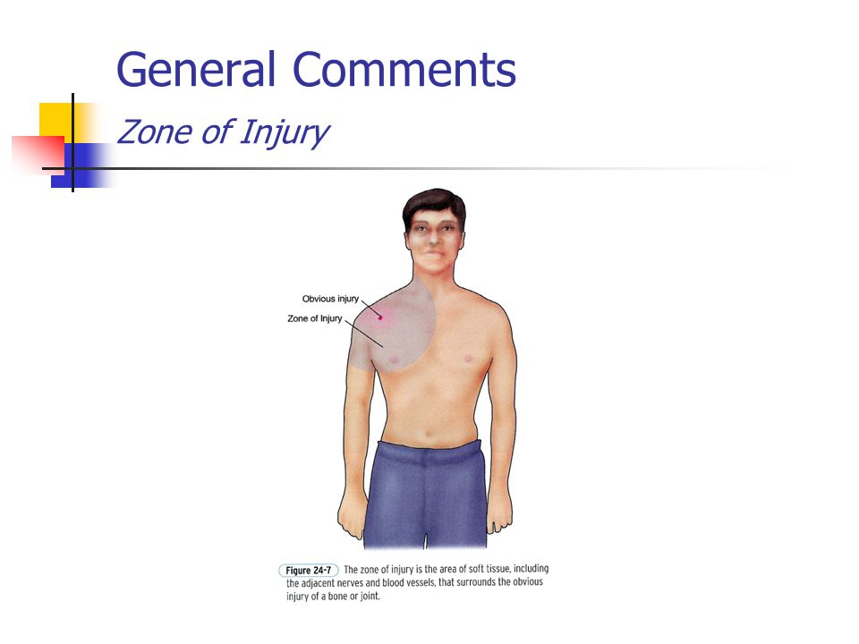 General Comments Zone of Injury