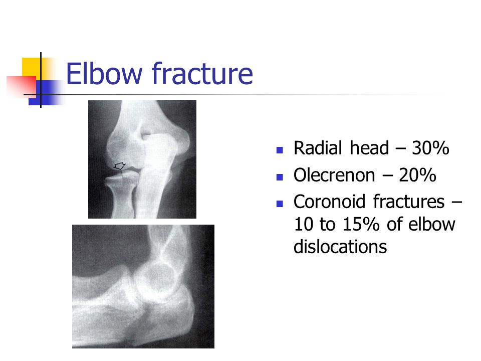 Elbow fracture Radial head – 30% Olecrenon – 20%