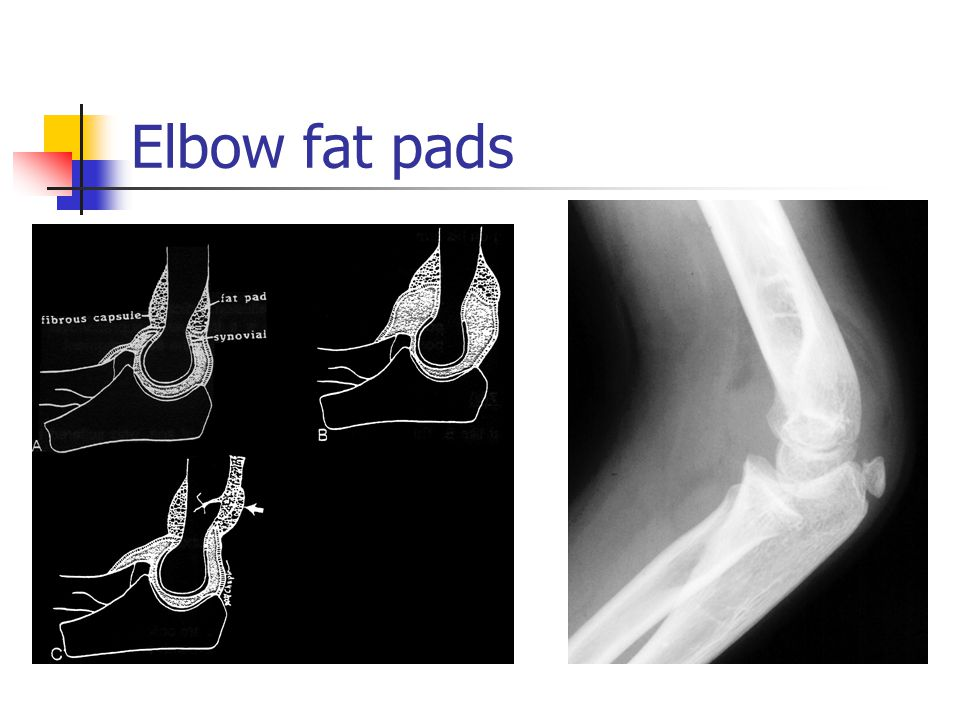 Elbow fat pads Look for fat pad sign!!!!