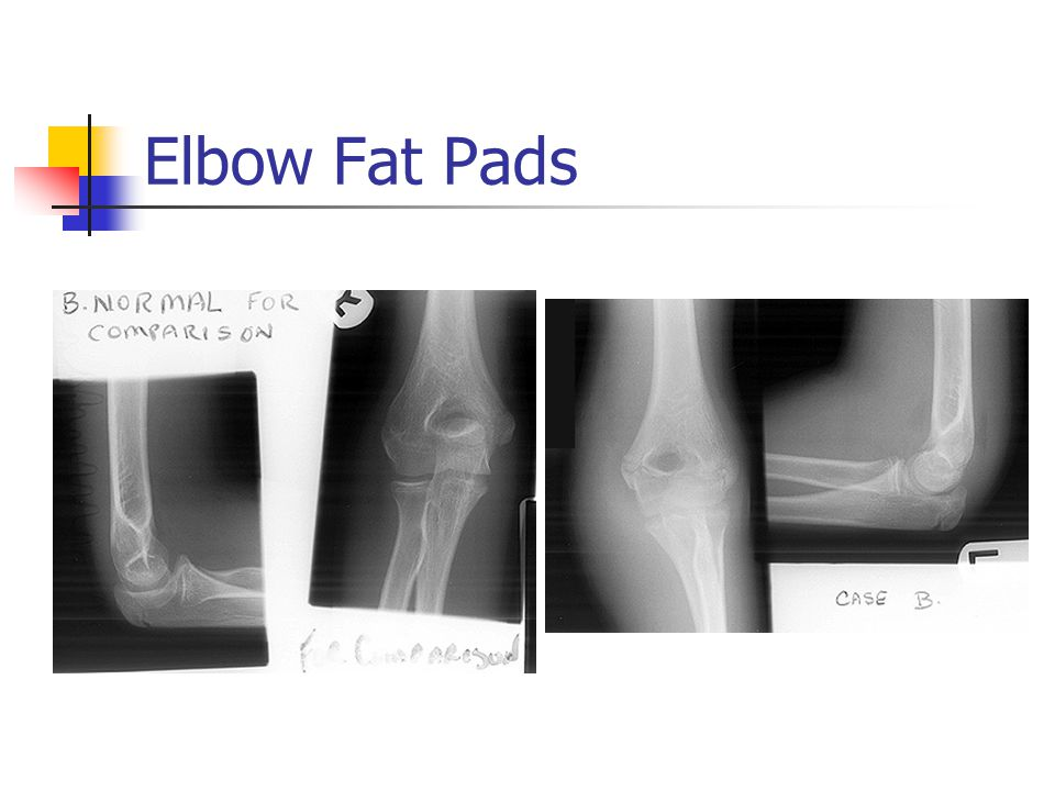 Elbow Fat Pads