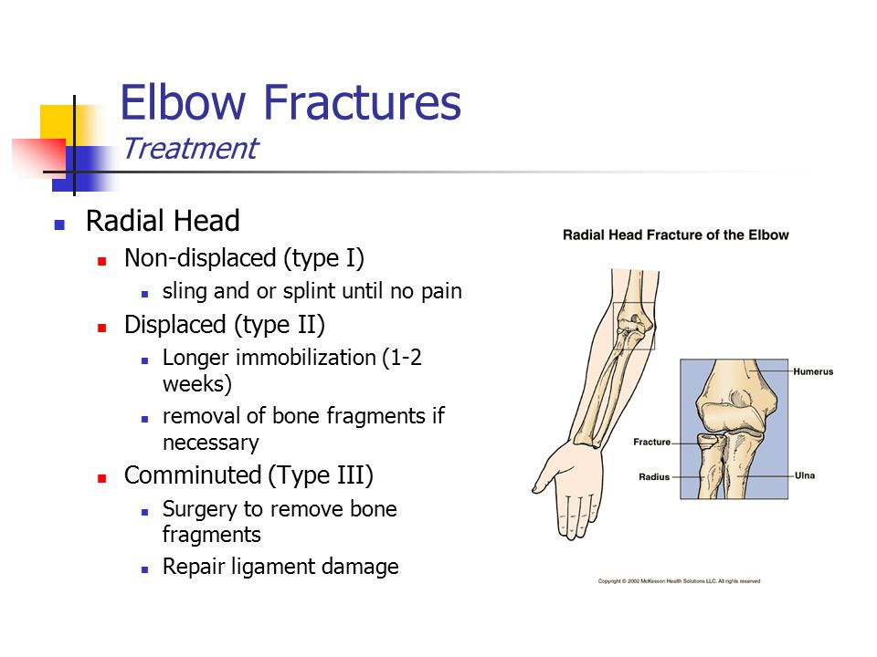 Elbow Fractures Treatment