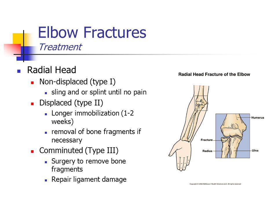 Elbow Fractures Treatment