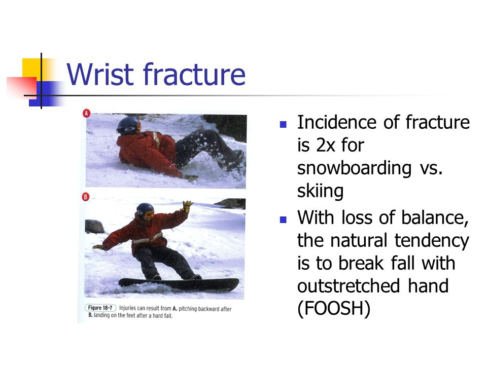 Wrist fracture Incidence of fracture is 2x for snowboarding vs. skiing
