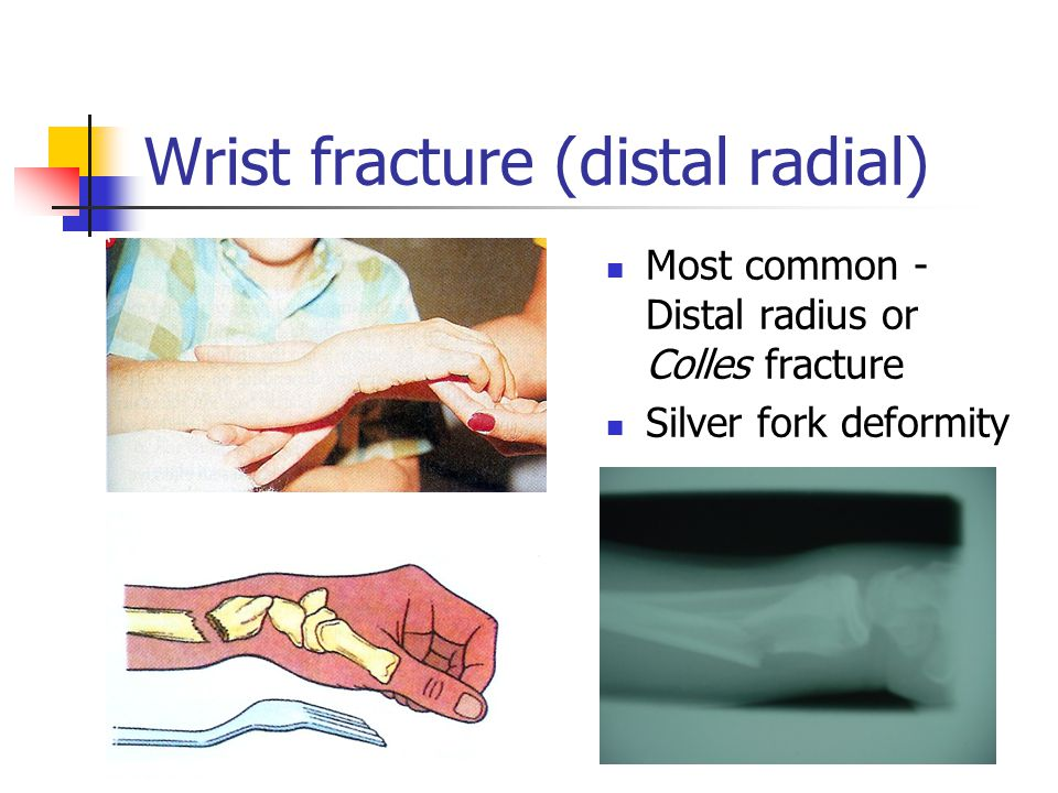 Wrist fracture (distal radial)