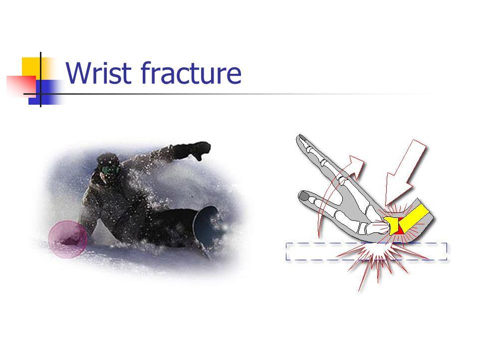 Wrist fracture mechanism: