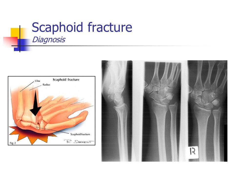 Scaphoid fracture Diagnosis