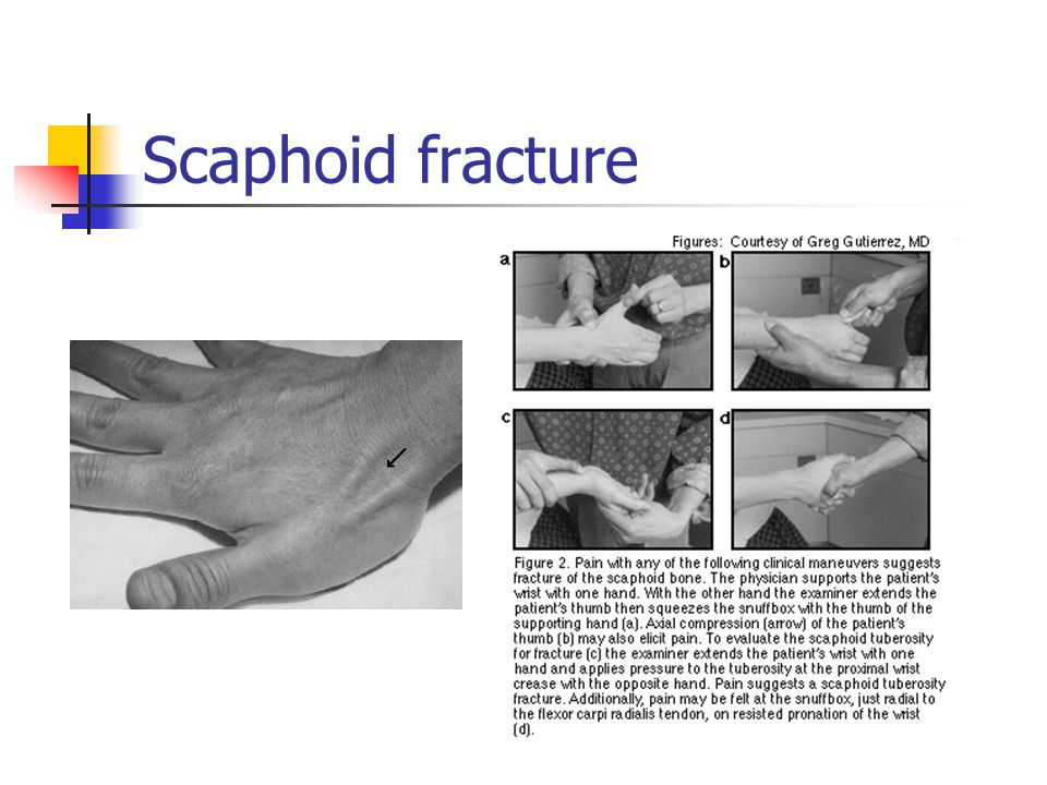 Scaphoid fracture - snuff box tenderness (see clinical differential diagnosis:)